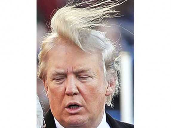 donald-trump-hair-photos-mystery-transplant-combover_2014-09-14_21-59-27-573x430